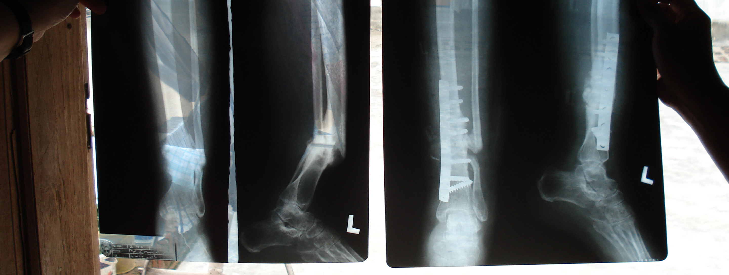x-rays of a limb fractured in an earthquake in indonesia