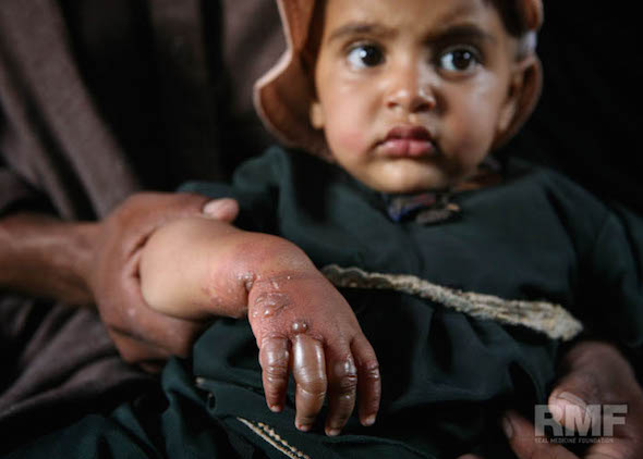 young child with burned hand