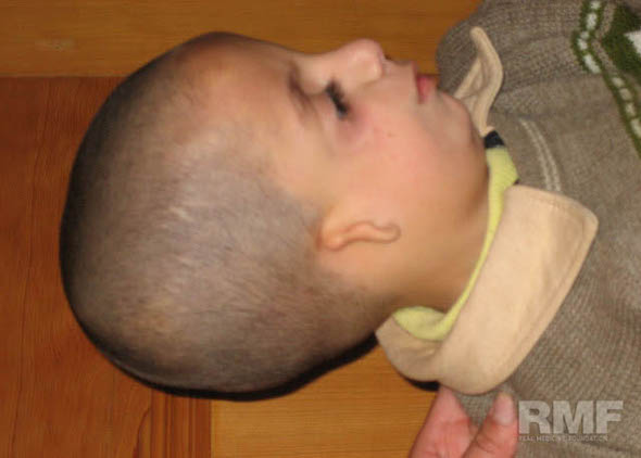 young boy with disabled ear