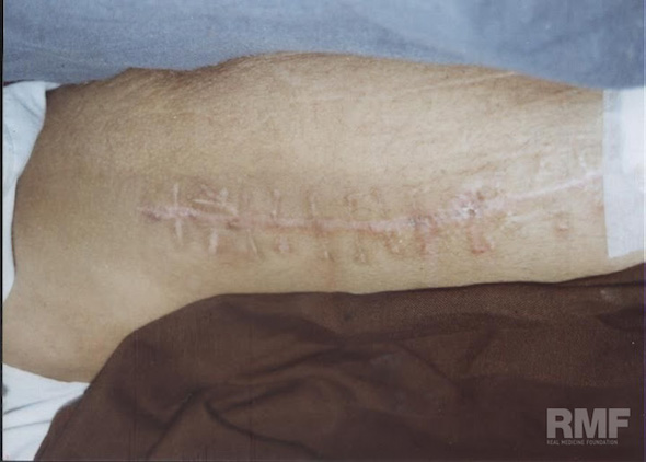 mans surgical scar on arm